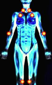 Imágen de tratamiento de la fibromialgia
