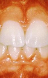 Imágen de tratamiento de la gingivitis