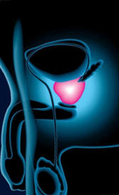 Imágen de tratamiento de la prostatitis