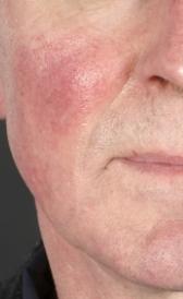 Imágen de tratamiento de la rosácea