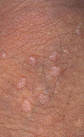 verrugas base pene