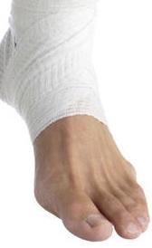 Imágen de tratamiento del esguince de tobillo