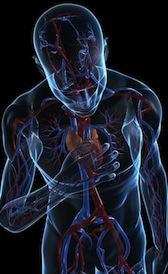 Imágen de tratamiento del infarto